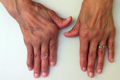 la enfermedad del paget